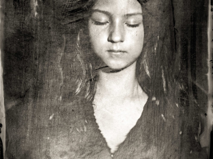 Olivie on Collodion